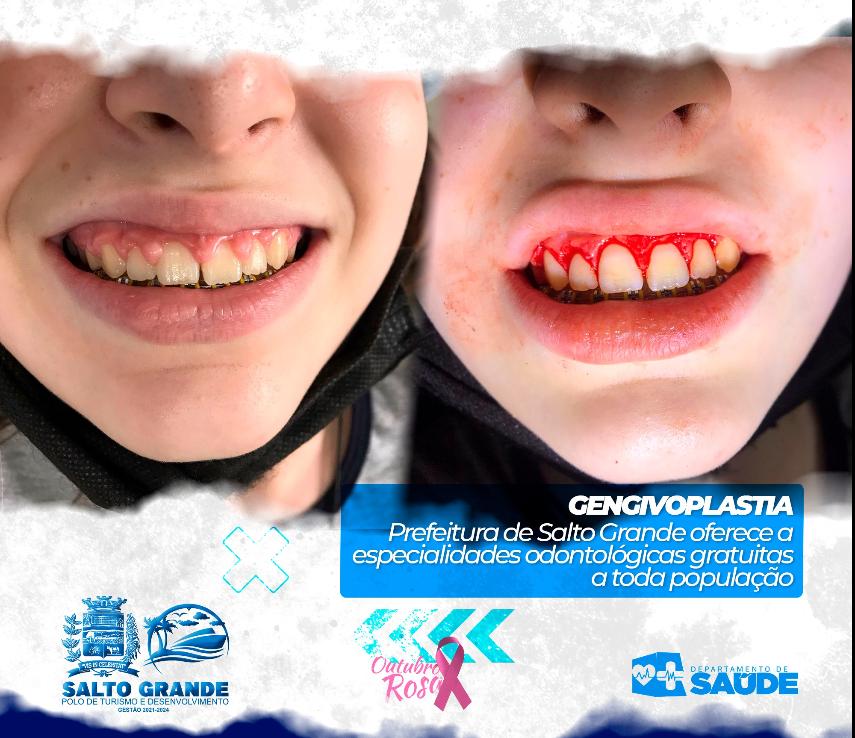 SAÚDE BUCAL: Prefeitura oferece tratamento dentário gratuito em Salto Grande